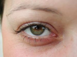 eye-open-leader